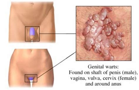 genital warts on the cervix picture 14
