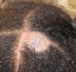 hair loss yeast infection picture 5