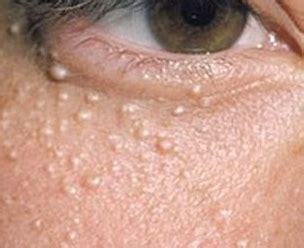 skin growths near eyes picture 10