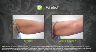 stomach gel wraps picture 9
