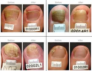 pinpoint laser for toenail fungus in utah picture 11