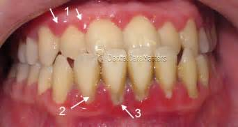 causes of teeth problems picture 19