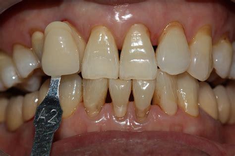 white overnight teeth whitener picture 14