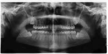non impacted wisdom teeth picture 7