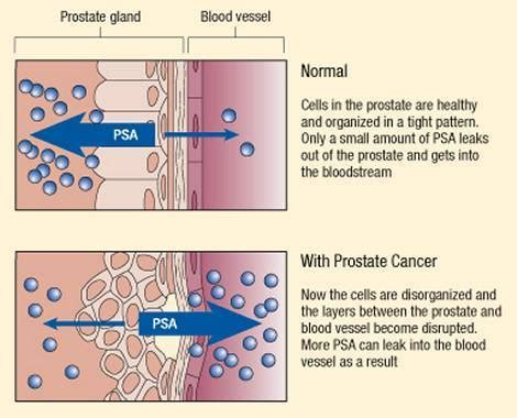 cialis prostate health picture 5