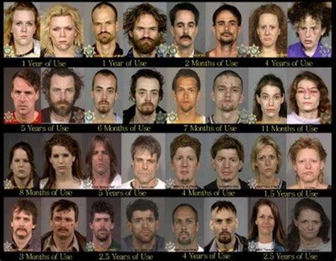 meth and drugs physical aging picture 10