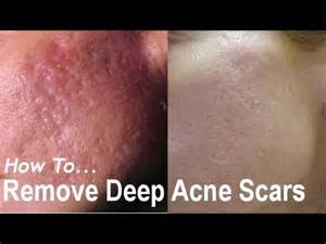 deep acne scars removal picture 1