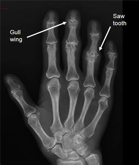 charcot joint picture 9