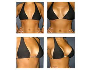 breast augmentation nyc picture 1