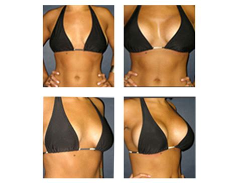 +without surgery breast enhancement before and after pictures picture 1