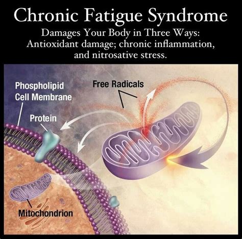 chronic muscle fatigue syndrom picture 5