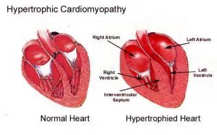 feline hyperthyroid heart mumur picture 10