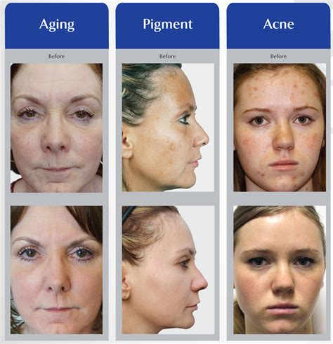 laser for acne what works picture 11
