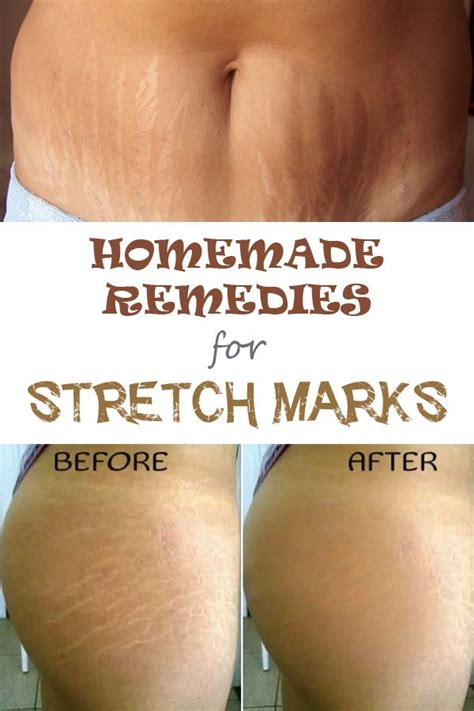 stretch mark cures picture 7