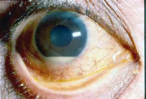 bacterial eye infection picture 10