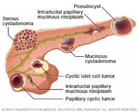 pancreatic cysts caused by yeast picture 14