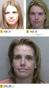meth and drugs physical aging picture 17