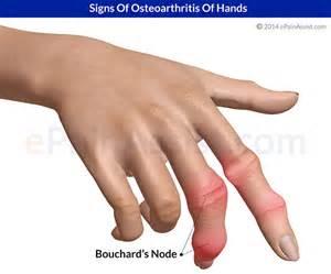 degenerative joint diseases picture 14
