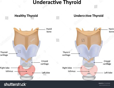 how to make under active thyroid high picture 11