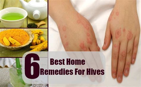 home cure for hives picture 2