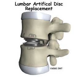 facet joint replacement and fda approval date picture 13