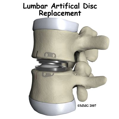 fda approved facet joint replacement picture 2