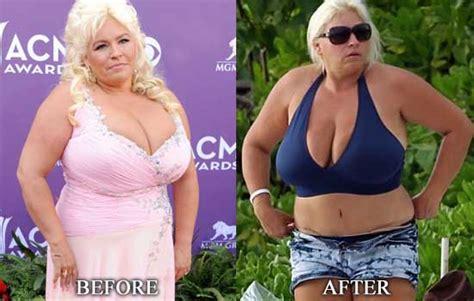 alabama breast augmentation picture 5