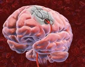 causes of blood clot in brain picture 2