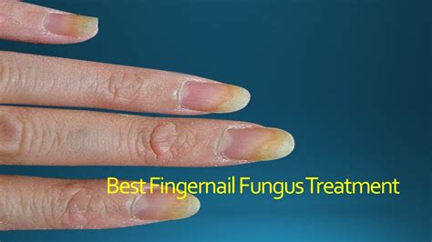 hand nail fungus cure picture 6