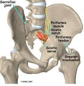 sacroiliac joint dysfunction picture 3