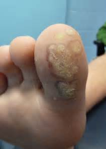 over the counter genital wart treatment picture 1