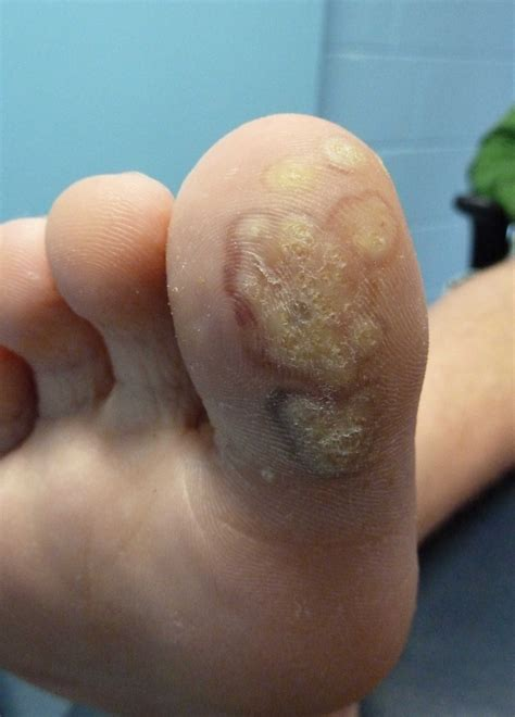 wart pictures picture 15