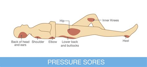 pressure on bladder when lying down picture 5