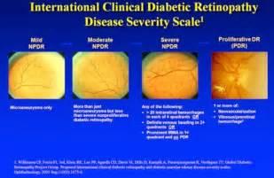california diabetic retinopathy picture 15