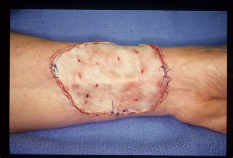 friction burn and skin grafting picture 17