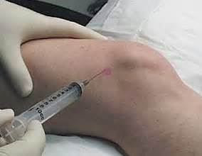 shot in the knee for pain picture 1