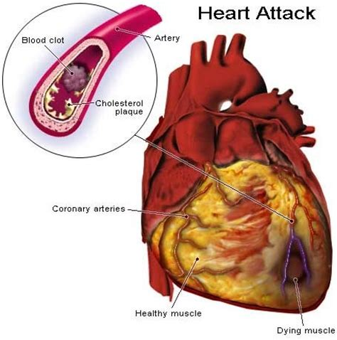 what foods affect the blood pressure test picture 3