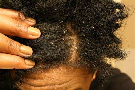 african american hair care dandruff picture 1