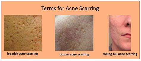 acne scarring on face what to do picture 12