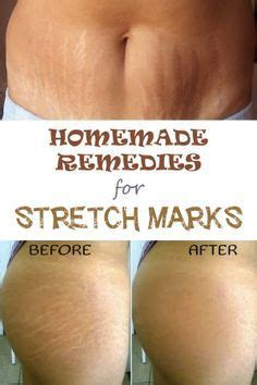 chemical ling does not remove stretch marks picture 4