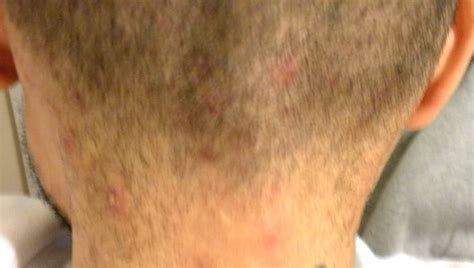 upper arm acne picture 13