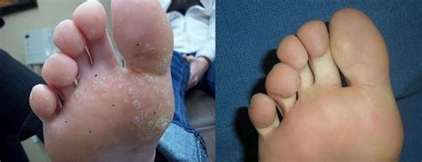 warts solution in hindi picture 2