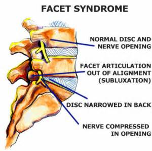 diagnosis of spinal facet joint laxity picture 6