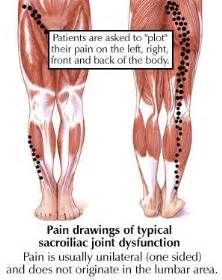s.i. joint dysfunction. picture 7
