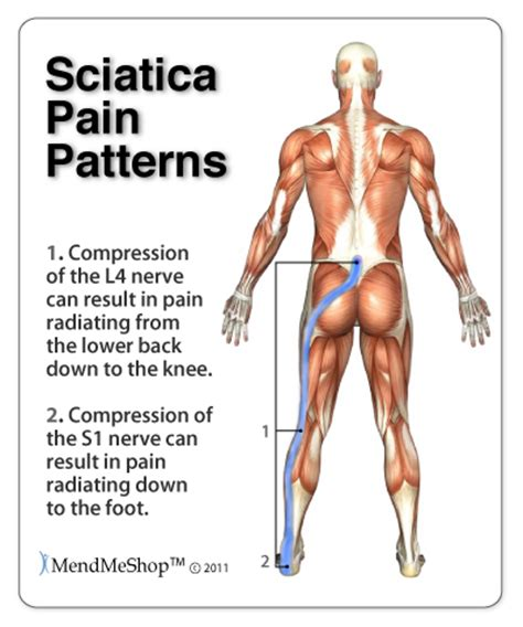 sciatic nerve related to erection in a male picture 7