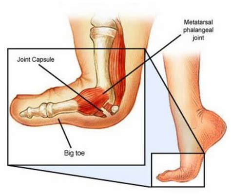 joint capsular sprain foot picture 9