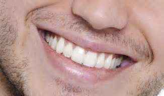 smile teeth picture 17
