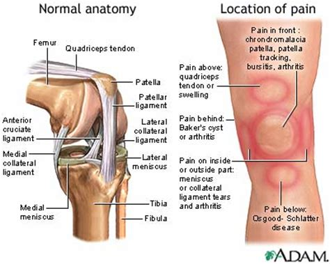 knee joint hot pain re picture 14