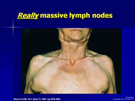 oroxine and swollen lymph nodes picture 6