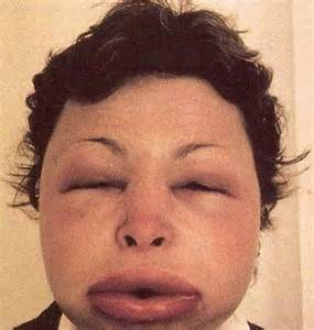 gastrointestinal conditions caused by hereditary angioedema picture 16